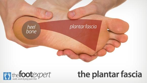 plantar fasciitis relief
